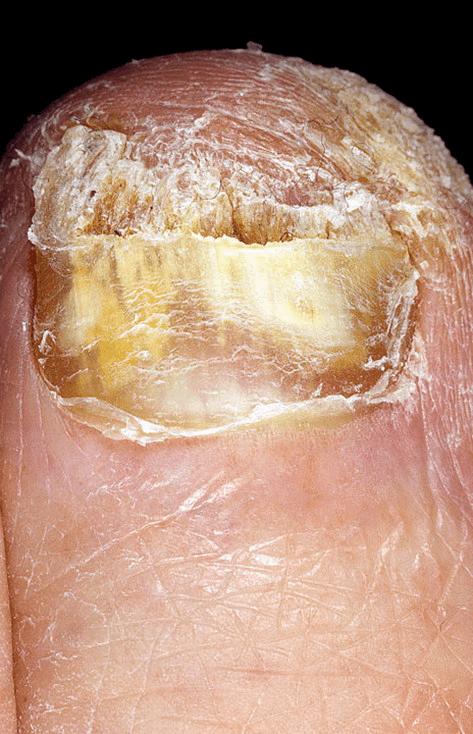 Ciuperca unghiilor dispare la uscaciune