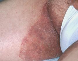 Ce este micoza inghinală?   Sănătatea pielii și a picioarelor